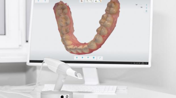escaner-intraoral-1280x720